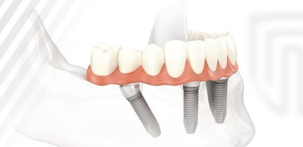 One to Three Dental Implants