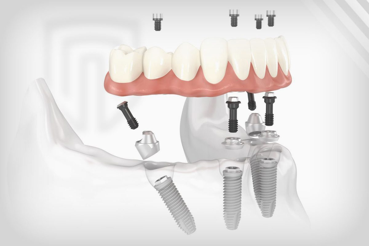 Replacing All Teeth Dental Implants