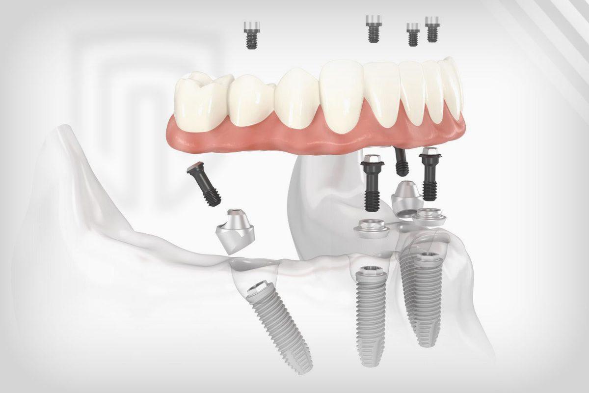 Replacing All Teeth Dental Implants